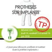 Proth%c3%a8se_sur_implants_grlh2c