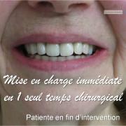 Mise_en_charge_imm%c3%a9diate_-_chirurgie_guid%c3%a9e_01_jcxpho