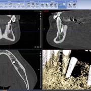 Implant_33_4_nibbpd