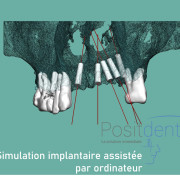 Positdental_mise_en_charge_imm%c3%a9diate_002_sgneo4