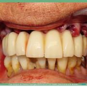 Pose_d_implants_et_d_un_bridge_%c3%a0_armature_m%c3%a9tal_en_1_seule_intervention_g.noachovitch-positdental-015_nlu2rp