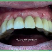 Misen_en_charge_imm%c3%a9diate_implants_et_dents_en_1_seule_intervention_004_mr15h9