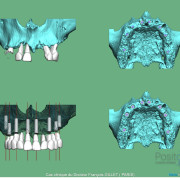 Misen_en_charge_imm%c3%a9diate_implants_et_dents_en_1_seule_intervention_005_hunt8c