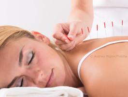 Akupunktur   andrey popov fotolia quellexsavzd