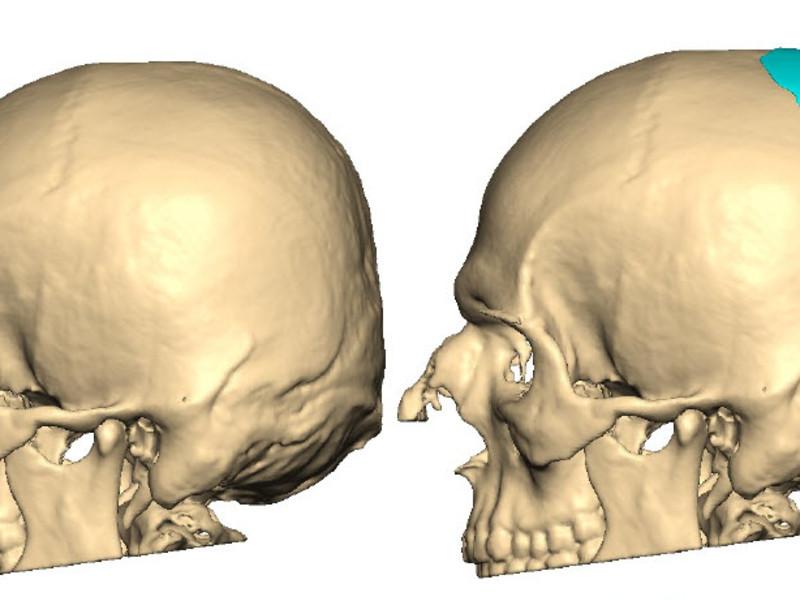 Schädeldeformitäten: Ein flacher oder platter Hinterkopf kann auch ...