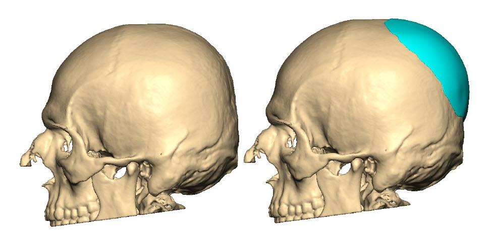 Die exakte Form und Größe des Implantats wird vom Patienten festgelegt und wird immer vor der OP visualisiert.