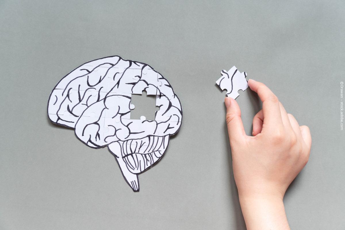 Diagnose alzheimersdvojg
