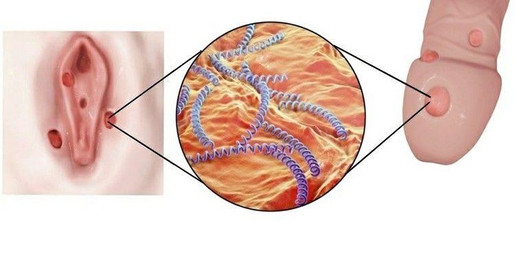 Infección por sífilis.
