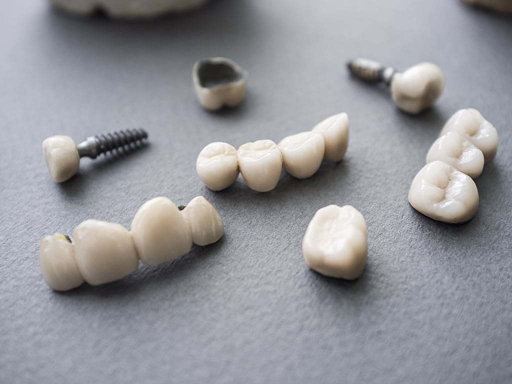 implants_et_protheses