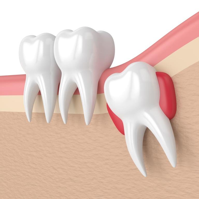 chirurgie orale - extraction dents de sagesse