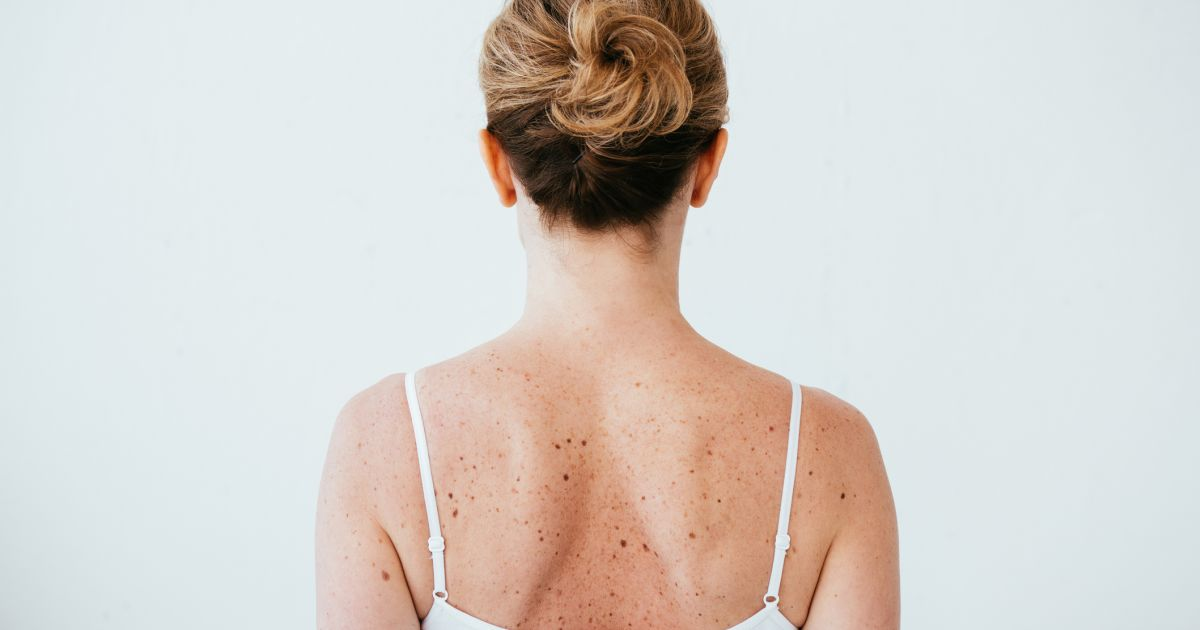 Surprising Spots To Check For Skin Cancer Skin Cancers Sharecare