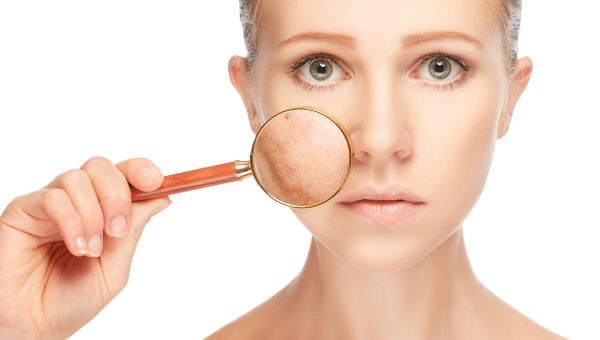 Not All Pimples are Created Equal