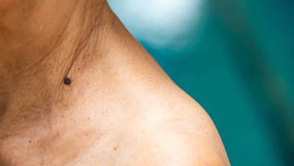 How to Spot Skin Cancer