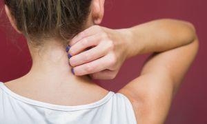 Is it Eczema, Dry Skin or Something Else?