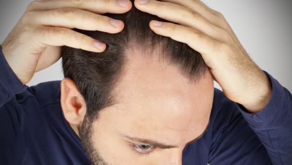 How Can I Stop Hair Loss?