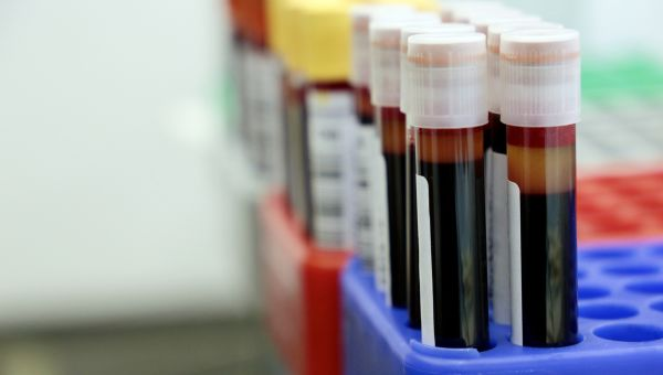Must-Know Anemia Facts
