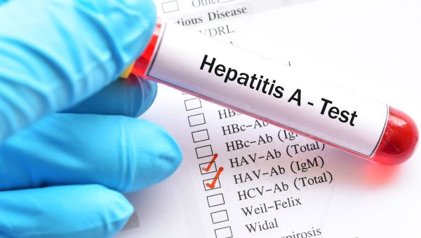 What You Need to Know About Hepatitis A in Hawaii