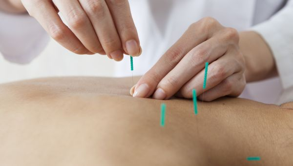 Can Acupuncture Help Ease Your Chronic Pain?