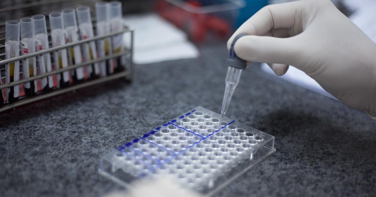 Lifting the lid on HIV | Pursuit by The University of Melbourne