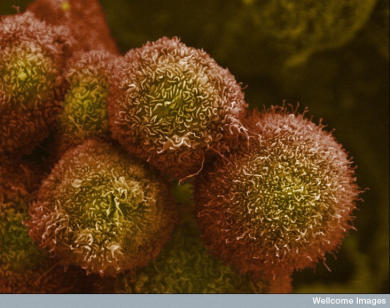 Pancreatic cancer cells. Picture: Wellcome Images.