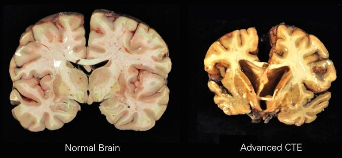 How CTE affects the brain. Picture: Boston University Center for the Study of Traumatic Encephalopathy